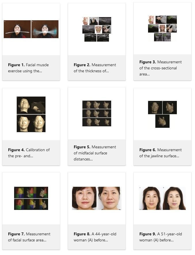 Gesichtsmuskeltraining: Wirkung eines Gesichtsmuskeltrainingsgeräts auf die Gesichtsfalten Pao-Gerät Gesichtsmuskeltrainingsstudie